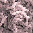 An international research team has used a novel approach to identify genetic factors that appear to influence susceptibility to cholera. The findings by investigators from Massachusetts General […]