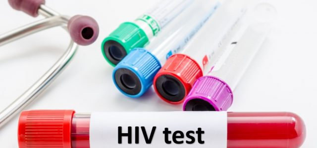 Sugar molecules on HIV envelope protein are likely target for future candidate vaccines Scientists at The Scripps Research Institute (TSRI) have made a discovery that could speed efforts to develop a successful HIV vaccine. The scientists found […]