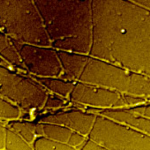 Axons, like those pictured above, are the so-called highways of the nervous system, which the herpes virus traffics to establish lifelong infection in a host. Photo by Laura Ruhge.